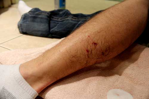 A man displaying a teeth marks on his leg from a dog bite in Macon, GA.