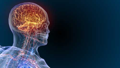 Traumatic brain injury hologram.