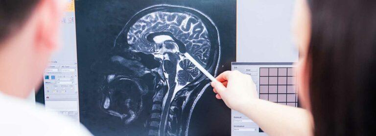 traumatic-brain-injury-file-a-lawsuit