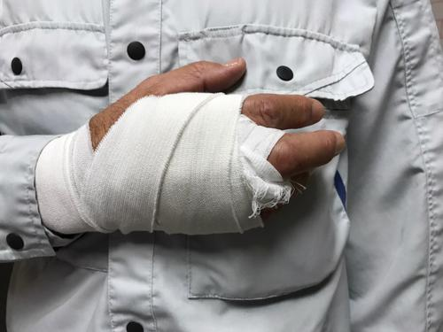 A man with a hand bandaged after being injured while on a job.